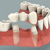 цены коронки на зуб